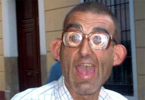 mas-feo-del-mundo-lentes